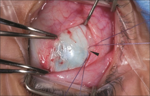 Dragging of the conjunctiva into the scleral suture tunnels which could implant epithelial cells into the scleral tracts and lead to epithelial cyst development (with permission from Coats DK, Olitsky SE, Strabismus surgery and its complications, Springer 2007)