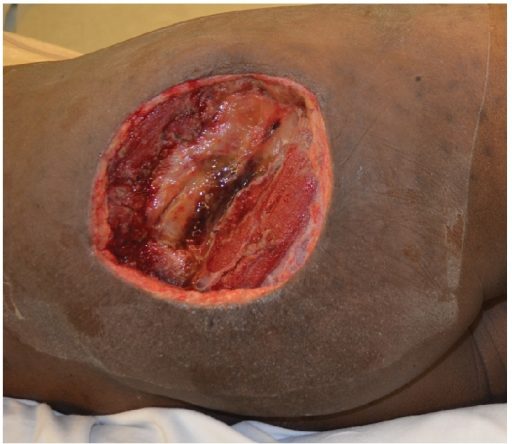 A 15 × 15 cm right gluteal defect following resection of a high-grade pleomorphic undifferentiated sarcoma following neoadjuvant radiation therapy.