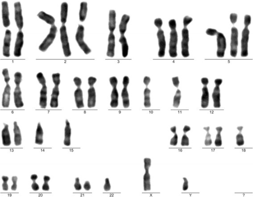 Karyotype with trisomies. Karyogram after cell expansion, from the first cultivation (mesenchymal stem cells at second passage). Karyotype: 43,XY, +2,+4,+5,−10,−11,−14,−15,−18,−22