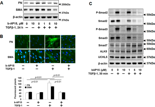 b-AP15 attenuates TGFβ-1 signaling in HLF cells.(A) HLF cells were pre-treated with increasing doses of b-AP15 (0, 1, 5, and 10 μM) for 1 h, and then cells were treated with TGFβ-1 (2 ng/ml) for 24 h. Cell lysates were analyzed by immunoblotting with the antibodies to FN, α-SMA, and β-actin. (B) HLF cells were pre-treated with DMSO and b-AP15 (50 μM) for 1 h followed by TGFβ-1 (2 ng/ml) for 24 h, and then cells were fixed with 3.7% formaldehyde. Expressions of FN and α-SMA were detected by immunostaining with antibodies to α-SMA and FN. DAPI was used for nuclei staining (blue). Scale bar, 50 μm. (C) HLF cells were pre-treated with increasing doses of b-AP15 (0, 1, 5, and 10 μM) for 1 h followed by TGFβ-1 (2 ng/ml) for 30 minutes. Cell lysates analyzed by immunoblotting with the antibodies to p-Smad2, p-Smad3, Smad2, Smad3, Smad7, ALK5, UCHL5, and β-actin. Western blot images were cropped to improve the conciseness of the data; samples derived from the same experiment and the blots were processed in parallel. Representative of experiments performed at least 3 independent times.