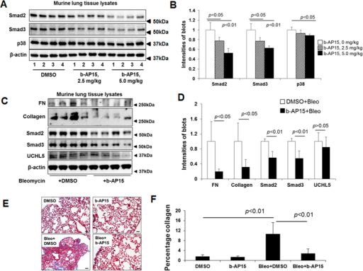 Administration of b-AP15 reduces bleomycin-induced pulmonary fibrosis in mice.(A) C57BL/6 mice were intraperitoneally injected with b-AP15 (2.5 mg/kg or 5.0 mg/kg, 3 × 1 every other day) for 8 days, and then lung tissues were collected. Lysates from lung tissues were analyzed by immunoblotting with antibodies to Smad2, Smad3, p38, and β-actin. (B) Intensities of blots in the A were quantified by imageJ software. (C) C57BL/6 mice were intranasally challenged with bleomycin (0.045 U/mice). Starting from day 11, mice were intraperitoneally injected with DMSO (0.25%) or b-AP15 (5.0 mg/kg in DMSO) 4 times of every other day. At day 21, lung tissues were collected and lysates from lung tissues were analyzed by immunoblotting with FN, type I collagen, Smad2, Smad3, UCHL5, and β-actin antibodies. Western blot images were cropped to improve the conciseness of the data; samples derived from the same experiment and the blots were processed in parallel. (D) Intensities of blots in the (C) were quantified by imageJ software. (E) The right lungs were fixed with 3.7% formaldehyde. Masson's trichrome staining was performed to detect the collagen in the marine lung slices. (F) The percentages of collagen deposition in the E were analyzed by NIS-Elements software.