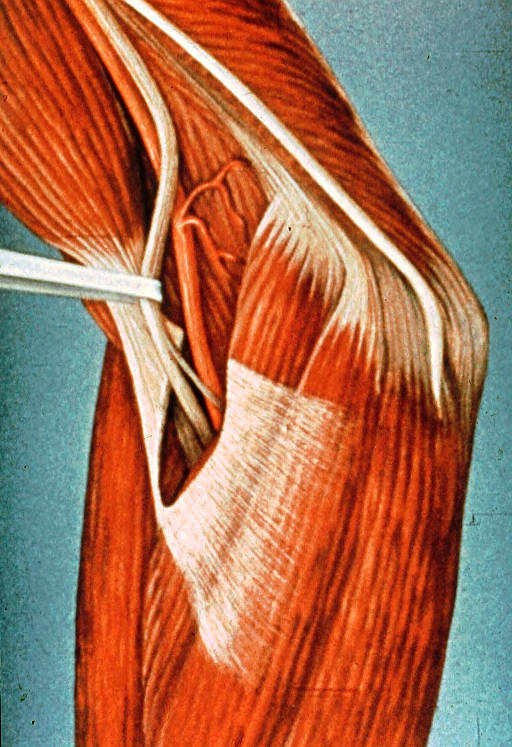 biceps brachii muscle; aponeurosis of biceps brachii muscle; medial nerve; brachial artery; ulnar nerve; medial humeral epicondyle; common flexor muscles