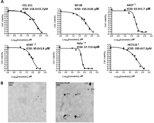 "Inhibition effects of hematein on cellular growth in normal and cancer cells. A. Normal (WI-38, CCL-211) and cancer (Hela, A549 and A427, HCT116) cells were cultured in the absence and in increasing concentrations of hematein (10 μM to 100 μM) as indicated. Cellular viability (normalized to DMSO control) was measured after 48 hours using CellTiter-Glo® Luminescent cell viability assay. Data points represent the average of IC50 value of hematein in triplet experiments and bars indicate SD. ""*"" denotes p < 0.05 when compared with IC50 values of CCL-211 cells and ""†"" denotes p < 0.05 when compared with IC50 values of WI-38 cells. B. CCL-211 cells were incubated in the absence and presence of 50 μM hematein for 48 hours. Block arrows indicate staining of the nucleus after hematein incubation. Original magnification: × 100."