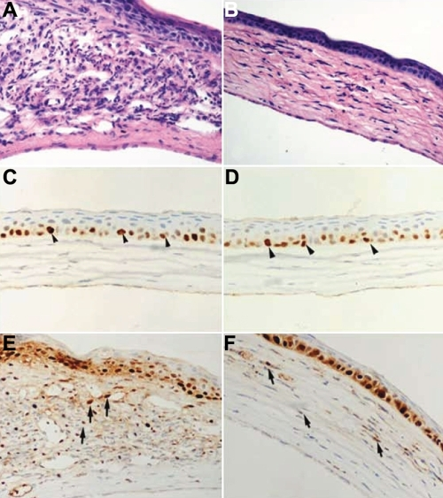 Influence of LOR on the histopathological and immunohistochemical studies in mouse corneas 14 days after UV irradiation. The typical histologic findings of cornea stained with hematoxylin and eosin (A, B) are shown. A: The cornea in the saline-treated group shows marked inflammation, obvious edema, profound neovascularization, and significant hypercellularity in the stroma. B: The cornea in the LOR-treated group exhibits only scattered inflammatory cells, mild stromal swelling, and less neovascularization. Corneal tissues (C-F) were analyzed by immunohistochemistry to determine the expression of NF-κB. Immunohistochemical staining with an antibody against activated NF-κB was performed to detect the expression of NF-κB. Sections incubated without a primary antibody served as negative controls. All tissue sections were counterstained with hematoxylin. These samples were representative of all corneas examined. Brown staining indicates activated NF-κB. C,D: The cornea in the mock-infected group and the cornea in LOR alone group show that NF-κB activity is only observed very faintly in the base cells of epithelium (arrowheads). E: Recurrence induced wide spread positive staining of NF-κB, which was most robust in the stroma (arrows) of the saline-treated group. F: Scant immunoreactivity of NF-κB was observed in the stroma of the LOR-treated group (arrows). Original magnifications, 400X.