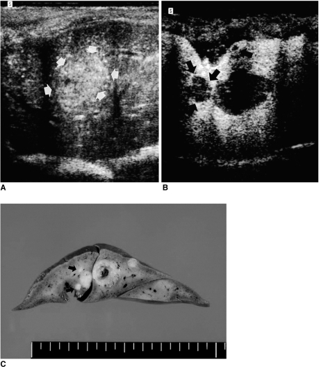 A. Unenhanced subcostal transverse sonogram of rabbit liver depicts a heterogeneous isoechoic lesion (arrows).B. Contrast-enhanced transverse phase-inversion US image obtained slightly inferior to the unenhanced image (A) reveals three nonenhancing foci measuring 2-12 mm in diameter. Two additional lesions (arrows) are identified, and their conspicuity is much greater than at unenhanced conventional imaging (A).C. Transverse section of the liver reveals five tumors at the same location. Compared to B, two additional lesions (arrows) less than 5 mm in diameter are apparent.