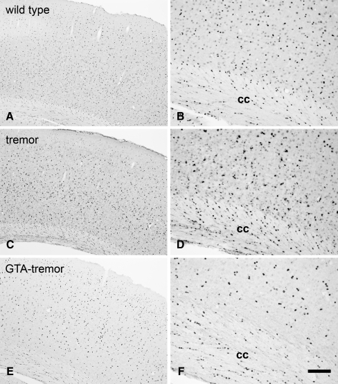 AceCS1-immunoreactivity comparison between adult wild,type and GTA treated and untreated tremor rats: low magnification images (left column), higher magnification images (right column). AceCS1 immunoreactivity in the cortex of an adult control rat (a,b) shows expression predominantly in cell nuclei in all layers of cortex. In a representative untreated adult tremor rat (c,d), AceCS1 expression was moderately upregulated, including in oligodendrocytes in the corpus callosum (cc). In a representative adult GTA-treated tremor rat (e,f), AceCS1 expression was reduced relative to untreated tremor rats, and was similar to the expression levels in control animals. Bar (in f): 300 µm (a,c,e), 120 µm (b,d,f)