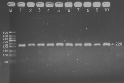 Electrophoresis of PCR products of the samples. Lane M, 50 bp marker ladder; lanes 1-10, samples. The 228 bp bands are the PCR products.