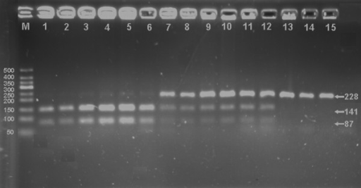 Genotyping of the LDL-R gene Ava Ⅱ polymorphism. Lane M, 50 bp marker ladder; lanes 1-6, A+A+ genotype (141- and 87-bp); lanes 7-12, A-A+ genotype (228-, 141- and 87-bp); and lanes 13-15, A-A- genotype (228-bp).