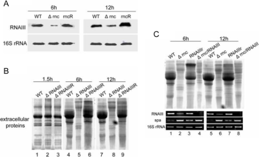 RNAIII regulates the levels of extracellular proteins at 6 h and 12 h.A: The expression level of RNAIII was analyzed by Northern blot. The level of RNAIII in different strains at 6 h and 12 h was detected by Northern blot. 16s rRNA was used as the internal control. WT: wild type, S. aureus 8325-4; Δrnc: an RNase III inactivation mutant from 8325-4; rncR: the restoration of RNase III activity in Δrnc. B: Detection of the extracellular proteins of WT and ΔRNAIII at the different time points. The extracellular proteins from the equal number of cells were extracted at the indicated time points. The results of SDS-PAGE showed that the extracellular proteins of ΔRNAIII were decreased in comparing with WT at 6 h and 12 h. 1,4,7: wild type; 2,5,8: ΔRNAIII (RNAIII deletion mutant); 3,6,9: ΔRNAIIIR (the restoration of RNAIII in ΔRNAIII). C: Detection of the extracellular proteins from different strains. The pOS1-RNAIII plasmid was constructed to recover the level of RNAIII in Δrnc. At the same time, the double mutant Δrnc/RNAIII was constructed. Then the extracellular proteins were extracted. The results showed that the extracellular proteins were increased at 6 h and 12 h after the level of RNAIII was recovered in Δrnc. The level of RNAIII was measured by RT-PCR. 16s rRNA was used as the internal control. 1,5: WT, wild type; 2,6: Δrnc; 3,7: RNAIIIr(the Δrnc strain transferred with the plasmid pOS1-RNAIII); 4,8, Δrnc/RNAIII. The experiment has been repeated for three times.