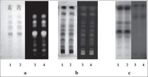 TLC pattern of various extracts of leaves of Vitex negundo (a) fl avonoids in ethanol extract of leaves of Vitex negundo, track 1 and 2 indicate TLC pattern exposed to visible light and track 3 and 4 at 366nm after derivatisation with NP/PEG reagent (b) TLC pattern of supercritical fl uid extract of leaves of Vitex negundo observed at 366nm (track 3 and 4) and in visible light after derivatisation with Anisaldehyde sulphuric acid reagent (track 1 and 2). (c) TLC pattern of hydrodistilled oil of leaves of Vitex negundo observed at 254nm (track 3 and 4) and in visible light after derivatisation with Anisaldehyde sulphuric acid reagent (track 1 and 2).