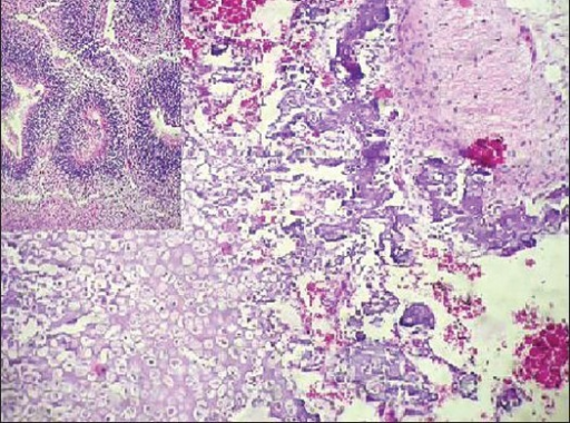 Sections showing bone, cartilage and mature glial tissue. Inset showing neuroepithelial tubules (H and E, ×400)
