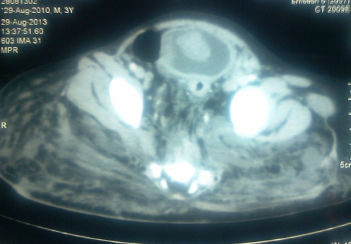 Figure 1: CT scan image shows soft tissue mass arising from dome of the urinary bladder.