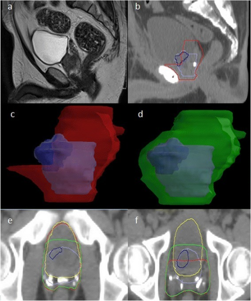 Typical case depicting the differences in shape and coverage between CTV RTOG and CTV MRI. Key - Purple: pre-op prostate, Blue: pre-op visible tumour, Red: CTV RTOG, Green: CTV MRI, Yellow: bladder. (a) pre-operative T2 MRI (b) planning CT scan (post-operative); the bladder neck has been pulled down. (c) CTV RTOG does not completely cover the region of the pre-operative prostate/ tumour. Although the bladder will now largely fill the location of the original prostate, the lateral soft tissue lateral remains at risk of microscopic disease. (d) CTV MRI extends 5 mm around the original prostate to cover the soft tissue that was adjacent to the prostate (e) Inferiorly the CTV RTOG treats more of the anterior bladder wall than CTV MRI where coverage may not be required in view of the original prostate location. (f) Superiorly the CTV MRI increases dose to the lateral bladder walls because it covers the soft tissue beside the bladder that remains at risk of microscopic disease in view of the original prostate/tumour location. CTV RTOG misses these areas.