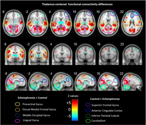 Abnormal FC associated with the thalamus in schizophrenia. Hot color represents higher FC with thalamus in schizophrenia, whereas blue cold color represents lower FC in schizophrenia. Images are in radiologic format with subject left on image right.