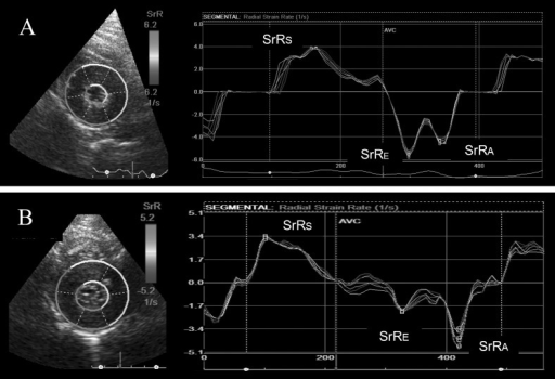 Images of radial strain rate of a healthy cat (A) and a cat with hypertrophic cardiomyopathy (B). SrRs, radial strain rate during systole; SrRE, radial strain rate during early diastole; SrRA, radial strain rate during late diastole.