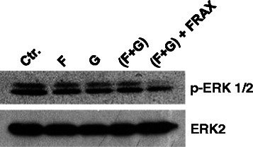 Addition of PAK1 inhibitor to KRAS prenylation inhibitors dephosphorylated ERK. Western blots demonstrate ERK dephosphorylation following 24 hour exposure of Rh2 cells to (F) farnesyltransferase inhibitor (BMS-225975 at 2 μM), (G) geranylgeranyltransferase inhibitor (P61A6 at 2 μM), combination of the two (F + G), or (F + G) along with PAK1 inhibitor (FRAX597 at 40 μM).