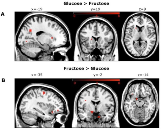Differences in functional resting state connectivity to the basal ganglia/limbic network between glucose and fructose administration.(A) Dual regression to the basal ganglia/limbic network demonstrates a glucose-induced increase in rsFC of the left caudatus (x = -17, y = 18, z = 8), left putamen (x = -34, y = -18, z = -8), precuneus (x = -18, y = -60, z = 32) and lingual gyrus (x = -18, y = -73, z = -3) relative to fructose (p = 0.02 uncorrected) (B) Fructose increased rsFC of left amygdala (x = -14, y = -3, z = -14), left hippocampus (x = -18, y = -4, z = -24), right (para)-hippocampus (x = 11, y = 0, z = -32), OFC (x = -33, y = 23, z = -16) and precentral gyrus (x = -34, y = -8, z = 57) compared with glucose (p = 0.02 uncorrected).