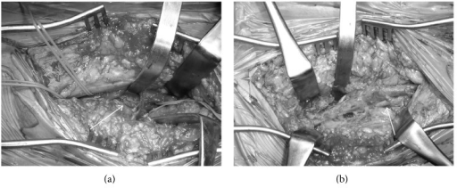 Intraoperative findings show (a) the controlled affected popliteal artery (white arrow) and (b) the resection being performed with an interposition graft (white arrow). The patient's head was to the right.