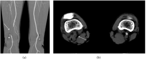 Computed tomography shows (a) the occlusion of the left popliteal artery (white arrow) and (b) a cystic mass compressing the popliteal artery (white arrow).