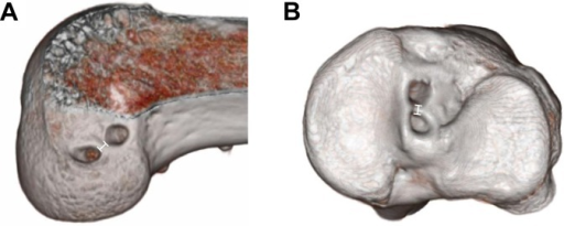 Three-dimensional computed tomography scan of (A) the femur and (B) the tibia with anatomic double-bundle anterior cruciate ligament reconstruction at 1 year after surgery.