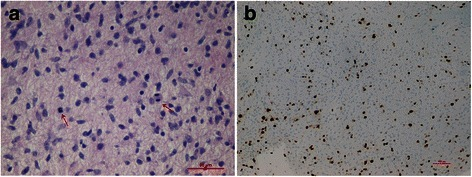 Photomicrographs of the lesion: astrocytes with nuclear atipia and mitosis (arrows) (a: hematoxylin and eosin, 40X) and high proliferation index (b, Ki-67 mmunocoloration, 10X). The surgical sample was routinely fixed in neutral buffered formol and embedded in paraffin. One 5 μm thick histological section obtained from each paraffin block was stained with hematoxylin and eosin. Further sections of the most representative paraffin block were used for immunohistochemistry and molecular analysis. Immunohistochemical studies were performed using the standard streptavidin-biotin technique and commercially available antibodies (Glial Fibrillary Acidic Protein, GFAP; p53 protein; Synaptophysin, SP; Ki-67). BRAF and H3F3 genes were analyzed as previously described [7, 8]