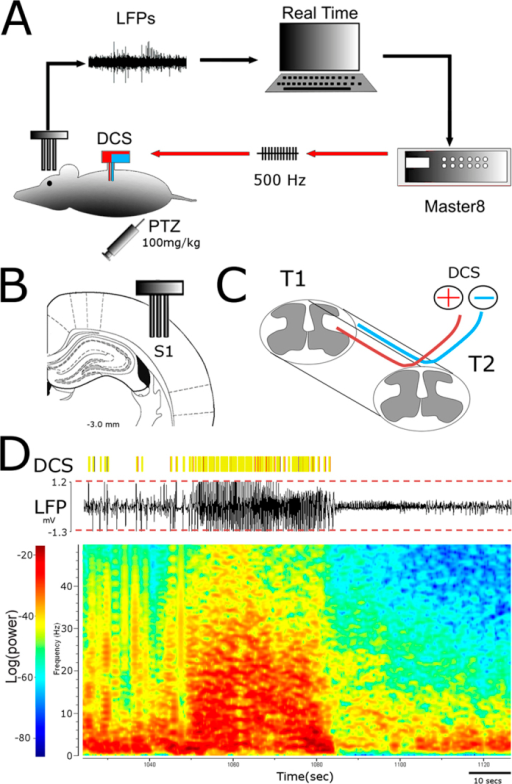Closed loop brain-machine interface setup.(A) Local Field Potentials recorded from primary somatosensory cortex are analyzed in real time. High amplitude signals trigger the microstimulator (Master8) which will deliver an electrical pattern to the dorsal columns (DCS). (B) Recording electrodes placement44. (C) Stimulating electrodes placement (resting in the epidural space between the vertebrae and the spinal cord). (D) Raw LFP recording with multiple crossings of pre-established threshold (red dashed lines). The yellow bars indicate DCS delivered whenever the threshold was crossed. Bottom: Spectrogram depicting a seizure episode.