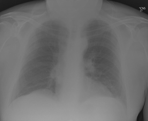 AP and lateral chest radiographs. XXXX/XXXX at XXXX hours.
