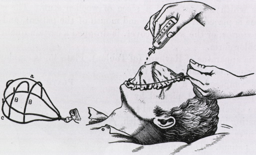 <p>A wire frame with a muslin cover is placed over the patient's face; drops of chloroform are being administered onto the cover. The wire frame without cover is shown on the left.</p>