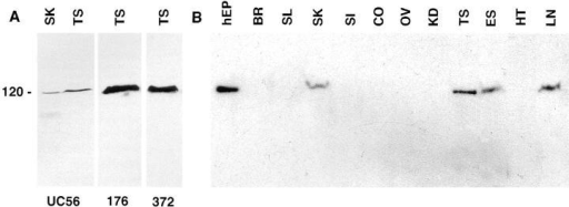 Immunoblot analysis with affinity-purified antiBSN UC56, 372, and 176 antibodies. (A) Total proteins  were isolated from mouse  testis and skin, and samples  were resolved by electrophoresis through 8.5% SDS– polyacrylamide gels. Proteins  were transferred by electroblotting to Immobilon-P  membranes (Millipore Corp.,  Bedford, MA), and blots were  subjected to immunoblot  analysis as described by the  manufacturer. Each of the three anti-BSN peptide antibodies were affinity column purified before use. In both testis and skin samples, a  single band of 120 kD was detected; this band was not detected by secondary antibody alone or by preimmune sera. (B) Total proteins  were isolated from a variety of adult mouse tissues and subjected to immunoblot analysis as outlined in A. Abbreviations are as indicated in the legend to Fig. 3, except: hEP, human epidermal keratinocytes; BR, brain.