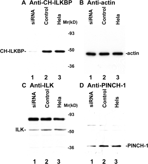 RNAi suppression of CH-ILKBP expression. (A–D) HeLa cells (lane 3), CH-ILKBP siRNA (lane 1), or the control RNA (lane 2) transfectants were analyzed by Western blotting with anti–CH-ILKBP mAb 3B5 (A, 10 μg proteins/lane), polyclonal antiactin antibody (B, 1 μg proteins/lane), anti-ILK mAb 65.1 (C, 10 μg proteins/lane), and polyclonal anti–PINCH-1 antibody (D, 10 μg proteins/lane). As we showed previously (Li et al., 1999), an additional protein band with an apparent molecular mass of ∼85 kD, which likely represents a protein that shares an epitope with ILK, was also detected by the anti-ILK mAb (C). (E–J) The CH-ILKBP siRNA (E, G, and I) and the control siRNA (F, H, and J) transfectants were stained with mAbs recognizing CH-ILKBP (E and F), paxillin (G and H), and ILK (I and J), respectively. Bar, 25 μm. (K–N) HeLa cells expressing GFP-ILK or GFP–PINCH-1 were transfected with CH-ILKBP siRNA and stained with anti–CH-ILKBP mAb 3B5 and a Rhodamine redTM–conjugated anti–mouse IgG antibody. Cells were observed under a fluorescence microscope with rhodamine (K and M) and GFP (L and N) filters. Bar, 15 μm.