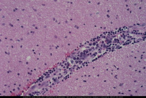 A section of the biopsy specimen revealed large noncohesive neoplastic cells within the lumen of a vessel. The vessel is also surrounded by smaller non-neoplastic lymphocytes.