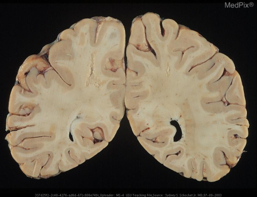 Coronal section of the brain showing small focally necrotic lesions in the white matter of both hemispheres.