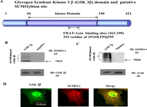 The Glycogen synthase kinase 3β (GSK 3β) functional domains (its protein kinase and FRAT/Axin binding domain) and the putative SU-MOylation site (K292 in 291FKFPQ295) is indicated (A). GSK 3β SUMO mutant (K292R) was constructed by site directed mutagenesis. GSK 3β SUMO mutant (K292R) was inserted into GST fusion (for bacteria) and Ha fusion (for cell line) expression vectors. (B) GSK 3β wild type (wt) protein that was purified from E. coli was incubated with a SUMOylation assay kit (See Material and method). For the negative control, the same assay conditions were used without ATP (right lane). A western blot of the same sample was performed with GSK 3β monoclonal antibody to monitor the protein amount in the experiment (at bottom). SUMOylated GSK 3β, as several high molecular weight protein bands, was indicated. (C) A western bolt of the immunopurified GSK 3β from COS-1 was performed using the SUMO-1 specific antibody. SUMOylation of GSK 3β was detected as high molecular weight protein bands, as indicated (left lane). For the negative control, an unrelated mouse antibody was used (right lane). To monitor the total protein amount to be used in the cell lysates, the western blot was per-formed with actin monoclonal antibody (bottom). (D) Confocal microscopic analysis of endogenous GSK 3β wt (green color) and SUMO-1 (red color). GSK 3β was detected in both the cytoplasm and nuclear region. The SUMO-1 modification proteins were mainly detected in the nuclear region (yellow color). All the figures in this article represent results from three experiments repeated independently.