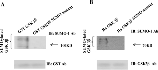 (A) The purified GST-GSK 3β wt or GST-GSK 3β SUMO mutant (K292R) fusion protein was used as the substrate protein in the SUMOy-lation assay as described in the Materials and Methods section. The SUMOylation of GSK 3β wt was detected as a high molecular weight protein band (left lane), whereas its SUMO mutant was totally inhibited, as shown (right lane). (B) Ha –GSK 3β wt or Ha –GSK 3β SUMO mutant was transfected to COS-1 cells and immunoprecipitated with Ha mouse monoclonal antibody. The immunoprecipitants were sub-jected to the western bolt with SUMO-1, as described in the Materials and Methods section. The SUMOylation of GSK 3β wt was indicated as several high molecular weight protein bands (left lane), whereas its SUMO mutant was totally inhibited (right lane). To monitor the GSK 3β protein expression, the immunoprecipitants were subjected to the western bolt with GSK 3β polyclonal antibody (bottom).