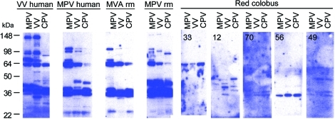 Western blot analysis of Orthopoxvirus (OPV)–reactive antibody responses in red colobus. Western blot analysis was performed to further characterize humoral immune responses against OPV antigens. Purified monkeypox virus (MPV), vaccinia virus (VV), and cowpox virus (CPV) were separated by sodium dodecyl sulfate-polyacrylamide gel electrophoresis, transferred to polyvinylidene difluoride membranes, and probed with plasma from a VV-immune human, MPV-immune human, MVA-immune RM, MPV-immune RM, and 5 representative red colobus. The red colobus animal identification number is shown in the upper left corner of each Western blot for comparison with the ELISA data for the same sample described in Figure 1.