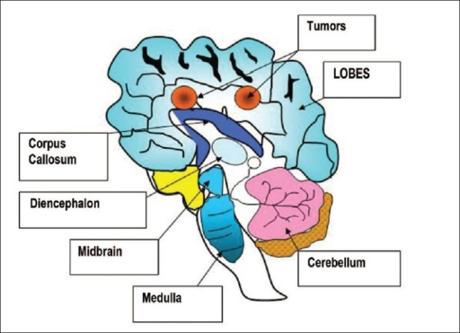 Drawing of a human brain with positions of two tumors