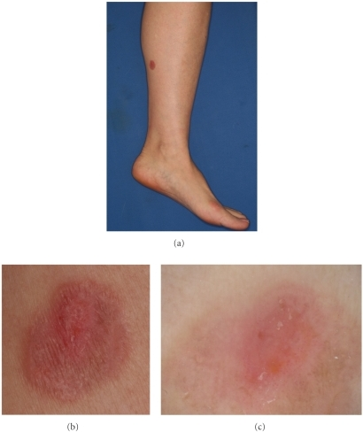 (a) A solitary slightly palpable scaly erythema on the left leg. (b) The lesion is sharply marginated with a scaly surface. (c) The dermoscopic examination demonstrated dotted and glomerular vessels with a homogenous pinkish background. A broad and indistinct whitish negative network is seen at the periphery.