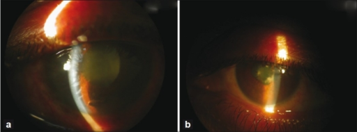 (a) Slit-lamp photograph of the right eye showing corneal edema and shallow anterior chamber, and fibrinous exudates in the anterior chamber. (b) Slit-lamp photograph of the left eye showing the shallow anterior chamber and fibrinous exudates in the anterior chamber