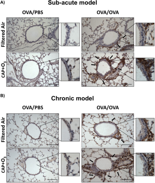 Immunohistochemistry in CAP+O3 and FA exposed mice. Arginase 1 immunostained lung tissues from OVA/PBS, OVA/OVA mice from the sub-acute (A) and chronic (B) models exposed to filtered air or CAP+O3 (200× magnification; bar = 100 μm; representative images of n = 4-5 per group. Brown colour indicates immunopositivity, arrows highlight positive areas, key positive areas inset at 400× magnification; bar = 20 μm).