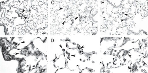 Lung sections from rat tissue showing particle uptake at Days 2 (A and B), 30 (C and D), and 90 (E and F) post-nano-TiO2 exposure. Particle aggregates (arrows) can be found in alveolar macrophages at Days 2 and 30, and mainly in the interstitium at Day 90. The tissues were stained with hematoxylin-eosin. (See colour version of this figure online at http://www.informahealthcare.com/imt)