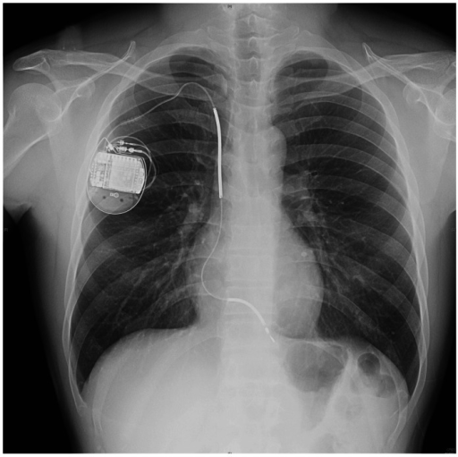 Chest radiography two weeks later after implantable cardioverter defibrillator implantation.