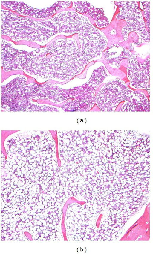 (a) Inflammatory cells infiltration after PMMA injected 3 d, HE ×50. (b) Inflammatory reaction lightened after PMMA injected 7 d, HE ×50.