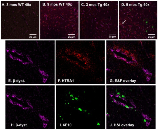 HTRA is located proximately to Aβ-laden vessels in the thalamus of 9 mos Tg-SwDI mice.Tissue sections representative of independent 3 and 9 month-old WT (A&B) and 3 and 9 month-old Tg-SwDI (C&D) animals were triple-labelled with HTRA1 (red), 6E10 (green) and β-dystroglycan (magenta) and analysed with a laser scanning confocal microscope (400×). Immunohistochemical analysis of the four different cohorts show HTRA1 closely associated with Aβ-laden vessels [white arrow, (D)] within the thalamus of 9 month-old Tg-SwDI mice (E–J) and appeared extracellular.