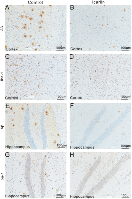 Therapeutic effect of Icariin on Aβ deposition and microglial activation.Representative microimages show the changes in Aβ deposition and microglial activation in cortex and hippocampus following Icariin treatment. A–B and E–F: In both cortex (A–B) and hippocampus (E–F) of APP/PS1 mice from the Icariin group (B and F), reduced numbers of Aβ plaques with relatively smaller size were observed, compared to the control group (A and E). C–D (cortex) and G–H (hippocampus): According to serial sections of Aβ staining, most Iba-1+ microglia accumulated at or surrounding Aβ plaques. In the treatment group (D and H) fewer numbers of Iba-1+ cells and smaller IR area of Iba-1 could be seen, compared to the control group (C and G).