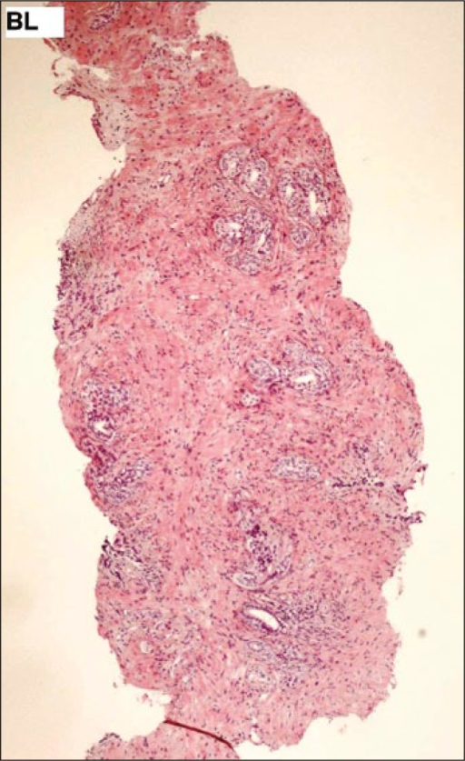 Prostate biopsy sample in position BL (H&E, scale 4x).