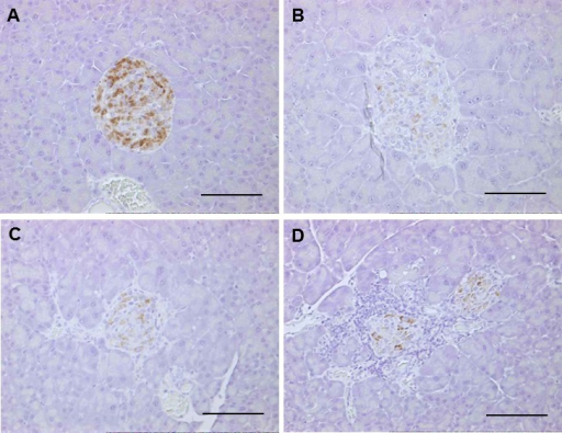 Comparison of the histology of pancreatic islets (immunostaining). (A) DDD male, (B)–(D) DDD.Cg-Ay males. The number of β-cells stained by anti-insulin antibody was markedly reduced in the islets of the DDD.Cg-Ay males (B–D) compared with the DDD male (A). Scale bars=100 µm.