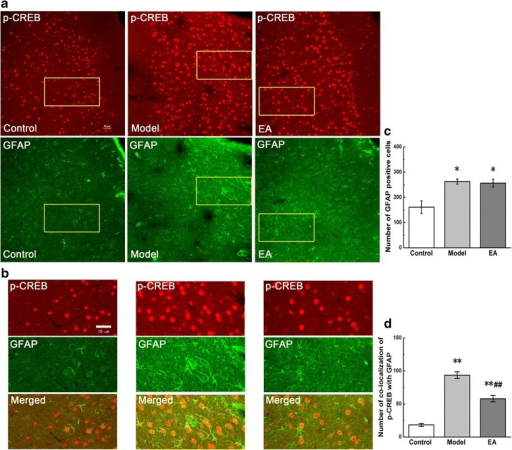 Co-localization of p-CREB and GFAP in coronal brain sections of ACC. Photomicrographs showed the expression of p-CREB (red) and GFAP (an astrocytic marker, green) from the same sections in figure a. Figure b was a high magnification image of the areas indicated by the yellow squares in the figure a. The double-immunofluorescence labeling showed that p-CREB co-expressed with GFAP in the ACC. Numbers of GFAP-positive cells and co-localization of p-CREB with GFAP were analysed in figure c and d. Error bars indicated standard error of the mean. Four rats for each group, five slides for each rat. * p < 0.05, ** p < 0.01 vs. the control group; ## p < 0.01 vs. the model group.