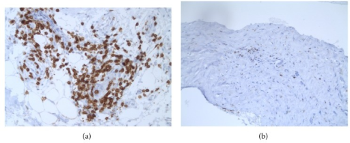 (a) Example of perivascular lymphocytic infiltrate; αCD3 stain. (b) Example of scattered periprosthetic lymphocytes; αCD3 stain.