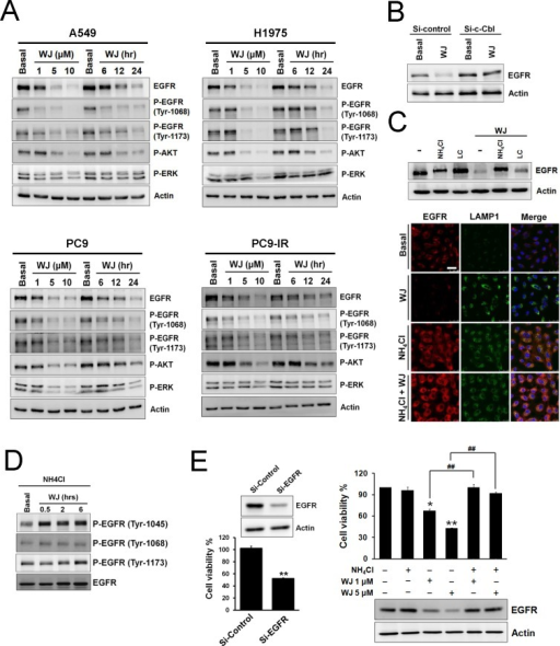 HDAC inhibitor reduced EGFR expression through c-Cbl-dependent lysosomal degradation pathwayA, NSCLC cells were treated with 1, 5, 10 μM WJ for 24 hours, or treated with 5 μM WJ for 6, 12, 24 hours. Total cell lysates were prepared and western blot was performed using indicated antibiodies. B, Effect of siRNA-mediated knockdown of c-Cbl on WJ-induced EGFR degradation in A549 cells. C, A549 cells were pre-treated with 20 mM NH4Cl or 10 μM lactacystin (LC) for 30 minutes followed by 5 μM WJ for 24 hours (upper panel). EGFR associates with late endosome/lysosome (lower panel). A549 cells were treated with DMSO, 5 uM WJ, 20 mM NH4Cl or WJ plus NH4Cl for 24 hours. The evaluation of EGFR and LAMP1 expression were detected by laser scan confocal microscopy. Scale bars: 50 μm. D, Effect of phosphorylations of EGFR in A549 cells after WJ treatment. A549 cells were pre-treated with 20 mM NH4Cl for 30 minutes followed by 5 μM WJ for 0.5 to 6 hours. E, Effect of siRNA-mediated knockdown of EGFR on cell viability (left panel). A549 cells were transfected with EGFR siRNA or control (scramble) siRNA. **P<0.01 versus control. Effect of NH4Cl on WJ-induced cytotoxicity (right panel). A549 cells were pre-treated with 20 mM NH4Cl for 30 minutes followed by WJ for 24 hours. The cell viability was measured by MTT assay. *P<0.05, **P<0.01 versus basal. ##P<0.01.