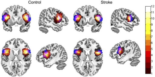 Spatial overlap between ROI maps for the left and right inferior frontal gyrus pars opercularis (BA 44), for control participants and participants with stroke. ROI maps defined manually are displayed in hot (color bar indicates 1–12 participants in each group). ROI maps defined using the automated approach are displayed in blue. Spatial overlap between manual and automated maps is indicated in pink. ROIs are overlaid onto the MNI template brain image in neurological orientation.
